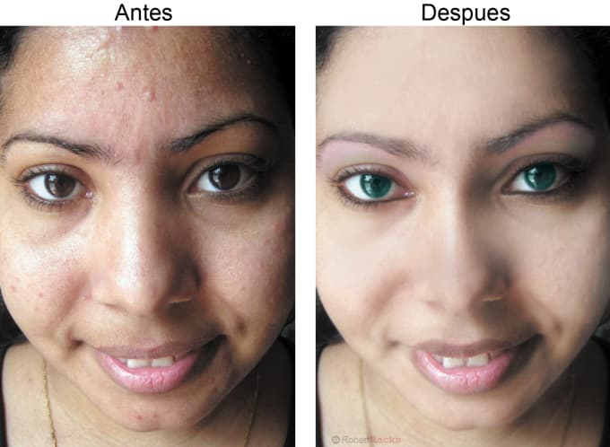 remove all your imperfections from your face with photoshop