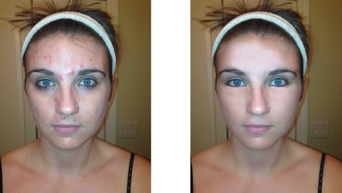 Pimple under eye bag