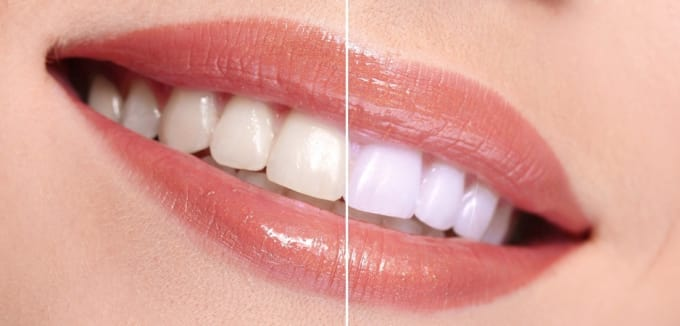 write and guest post at HQ teeth whitening dental blog