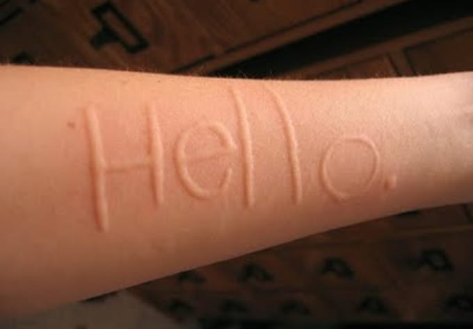 Drawing Lines On Your Skin With My Fingertips : Use my skin condition dermographism to write anything you