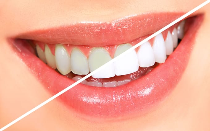 Whiten Your Teeth And Remove Braces Professionally By Mohsinkazi