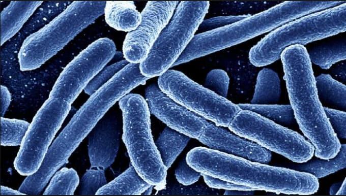microbiology task 1