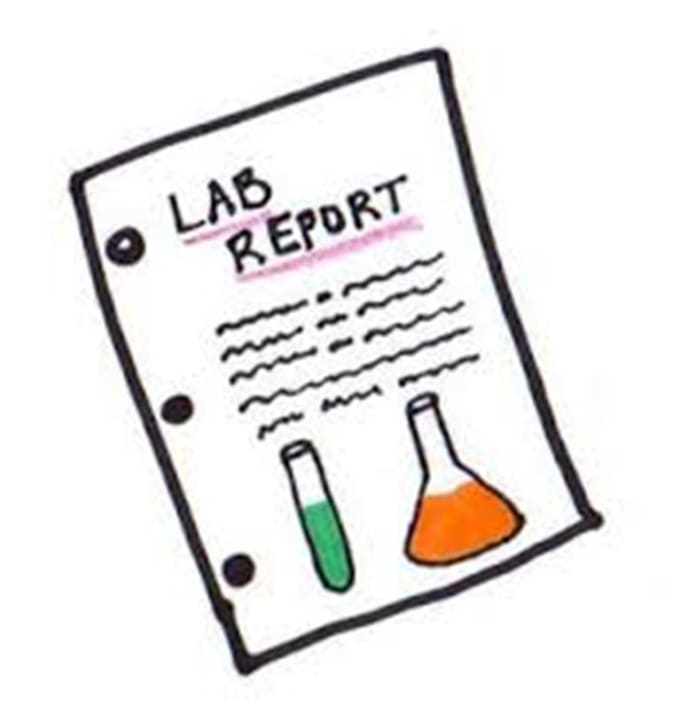 ecology lab report paper Read this essay on ecology lab report 2 scientific method on birds come browse our large digital warehouse of free sample essays get the knowledge you need in order.