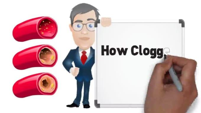 CloggedArteries