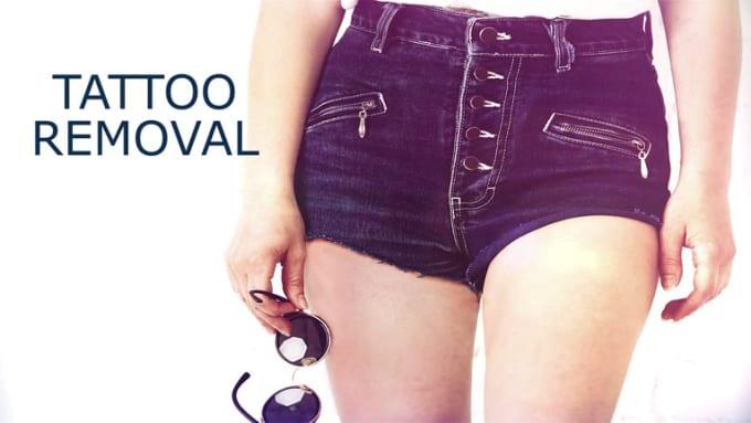 Tattoo Removal