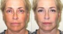 give you face and body makeover
