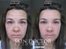 professionally retouch a headshot